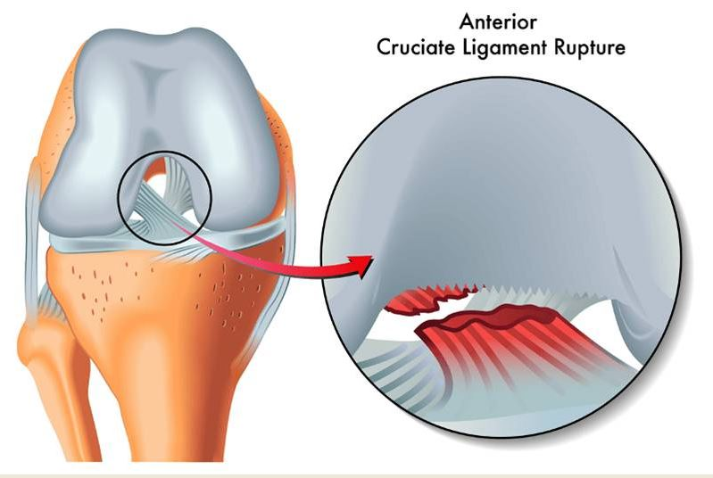 acl reconstruction tear melbourne