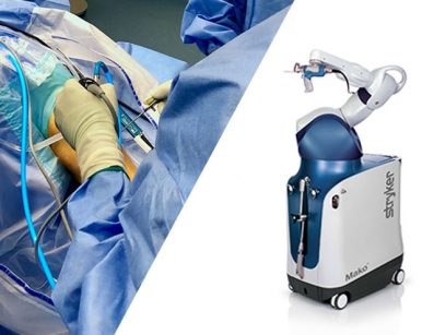 Traditional vs. Robotic Knee Replacement